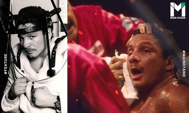 """UFABETWINS """"วินนี่ ปาซ"""" นักมวยยุคจตุรเทพ ที่คว้าแชมป์โลกได้ด้วยการฝังเหล็กในหัว คาง และ คอ"""